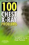 100 Chest X Ray Problems