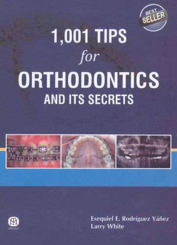 1001 Tips for Orthodontics and its Secrets 1 ED by Esequiel E Rodriguez Yanez 9381714398